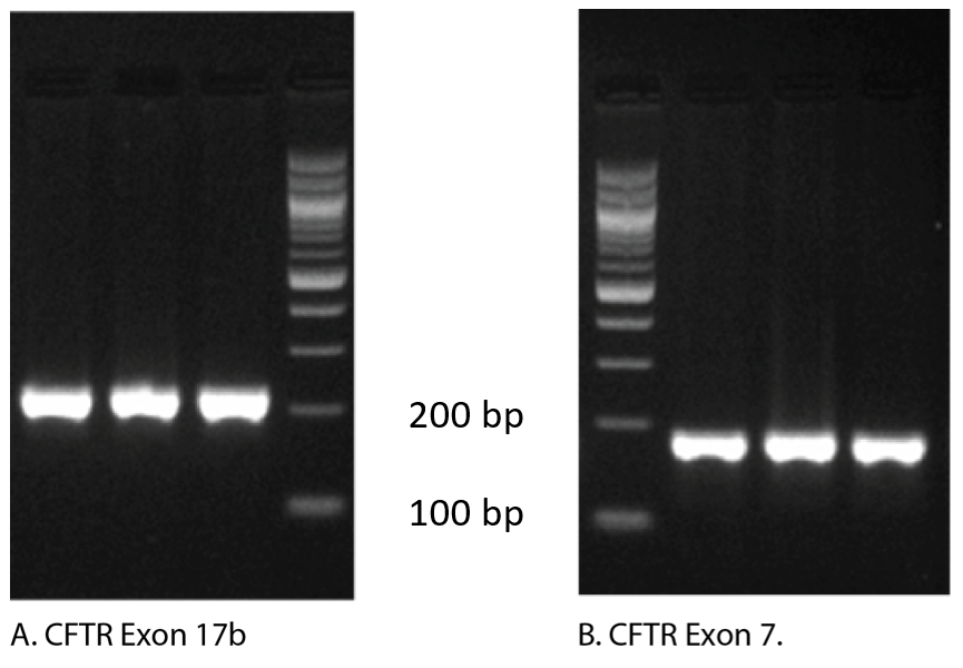Gel electrophoresis of qPCR products shows single amplicons