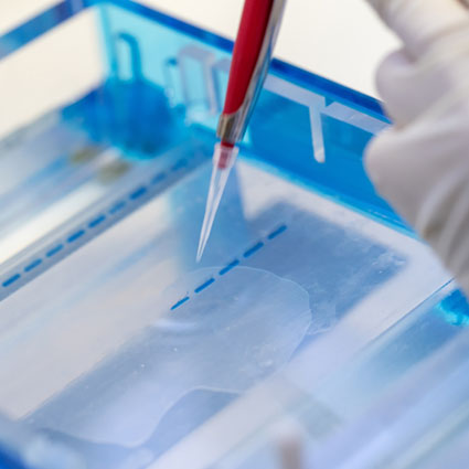 pipette tips used in genotyping analysis